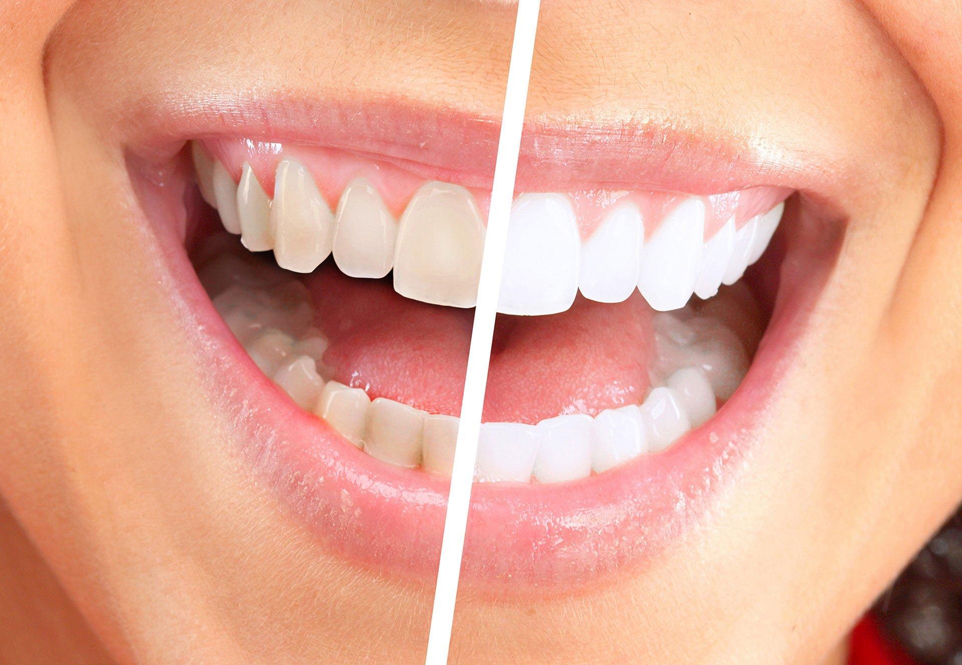 Tannbleking er rimeligere på nett