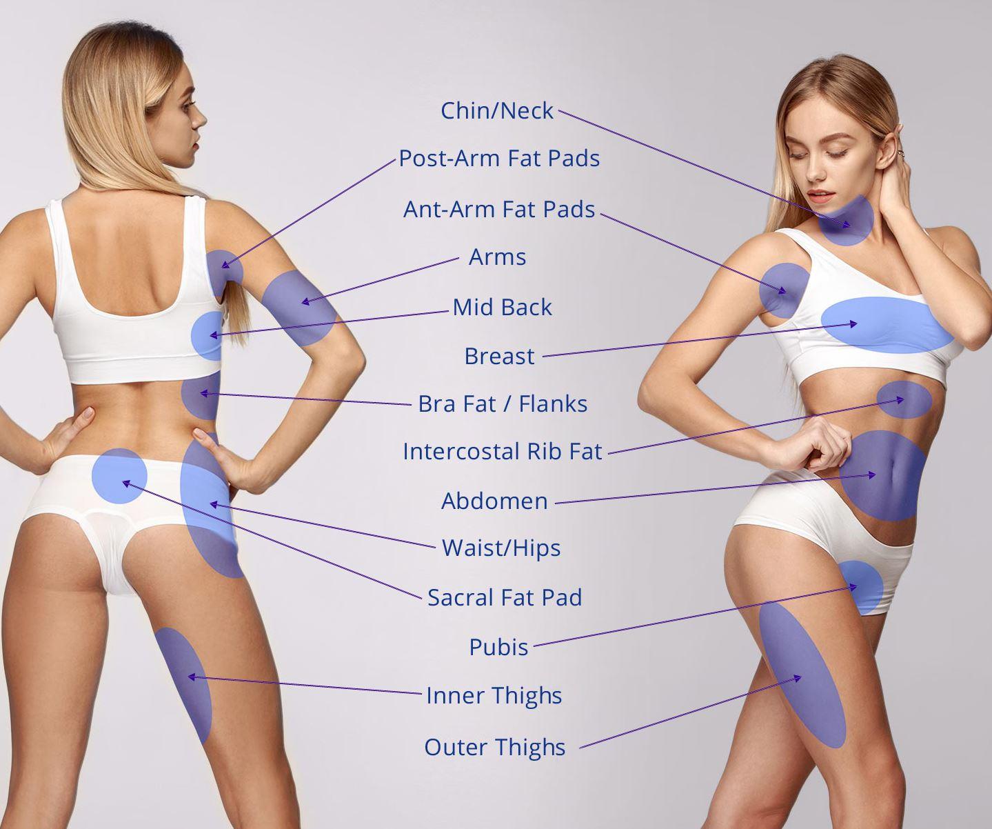 Fettsuging liposuction